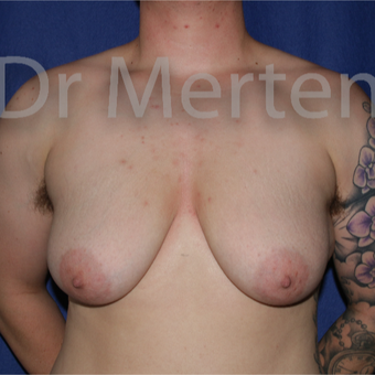 18-24 year old man treated with FTM Chest Masculinization Surgery before 3828888