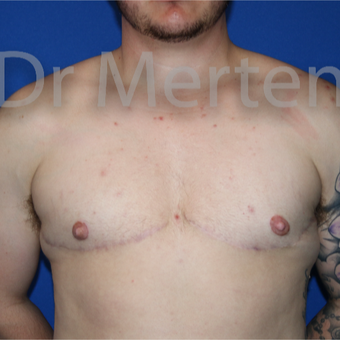 18-24 year old man treated with FTM Chest Masculinization Surgery after 3828888