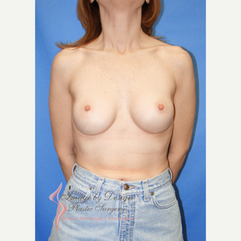 35-44 year old woman treated with Breast Implants after 3100590