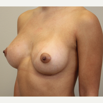 27 year old woman treated with Breast Augmentation after 3689577