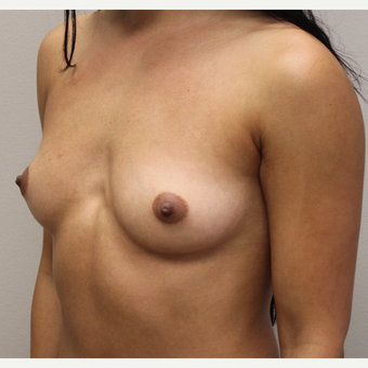 27 year old woman treated with Breast Augmentation before 3689577