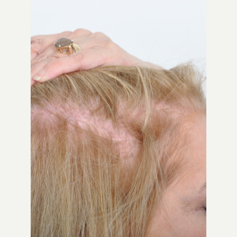 60 year old woman treated with PRP for Hair Loss before 2735818