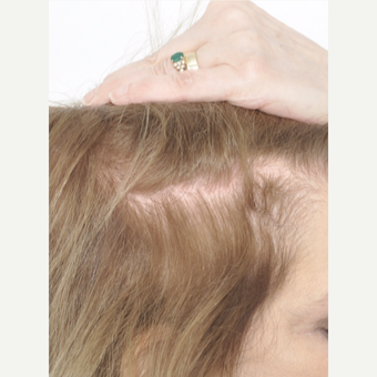60 year old woman treated with PRP for Hair Loss after 2735818