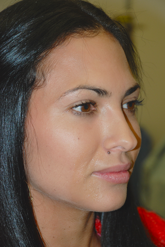 25-34 year old woman treated with Juvederm for Lip Augmentation before 2724231