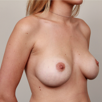 25-34 year old woman treated with Breast Implants before 3075231
