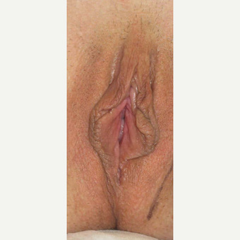 45-54 year old woman treated with Labiaplasty before 3787320
