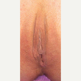 45-54 year old woman treated with Labiaplasty after 3787320