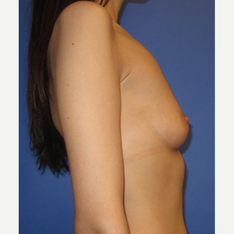 25-34 year old woman treated with Breast Implants (371cc) before 3098474