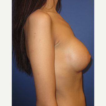25-34 year old woman treated with Breast Implants (371cc) after 3098474