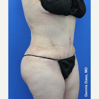 55-64 year old woman treated with Tummy Tuck after 3679927