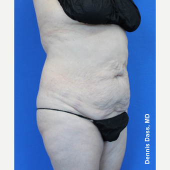 55-64 year old woman treated with Tummy Tuck before 3679927