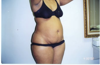Tummy Tuck and Tumescent Liposuction for a 34-year-old mother of two before 1497873