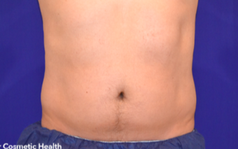 25-34 year old man treated with CoolSculpting after 1713747