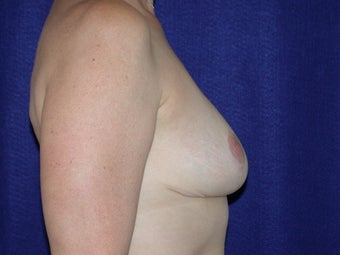 Breast Reduction after 205358