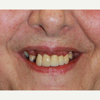 All-on-4 Dental Implants before 2894530