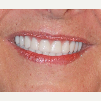 All-on-4 Dental Implants after 2894530