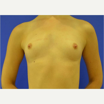 23 year old woman treated with Breast Augmentation before 3725696
