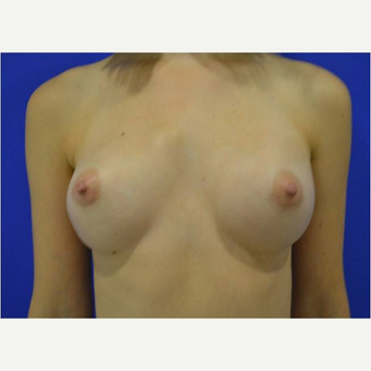 23 year old woman treated with Breast Augmentation after 3725696