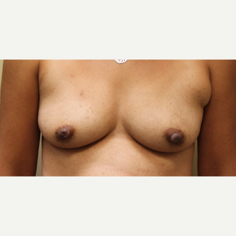 Transaxillary Breast Augmentation with Silicone Implants before 3465410