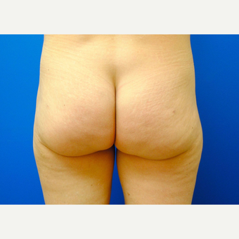45-54 year old woman treated with Liposuction after 3299874