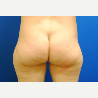 45-54 year old woman treated with Liposuction before 3299874