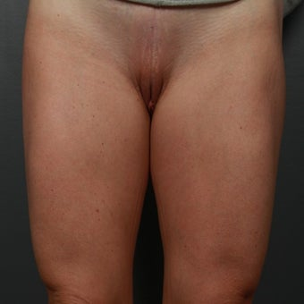 45-54 year old woman treated with Labiaplasty