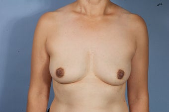 Breast Explant Without A Lift or Replacement Implants after 1523655