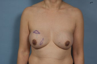 Breast Explant Without A Lift or Replacement Implants before 1523655