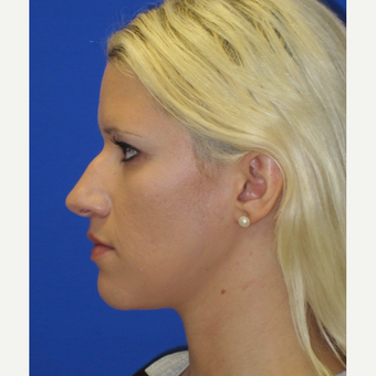 25-34 year old woman treated with Rhinoplasty before 3253554