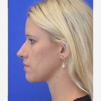 25-34 year old woman treated with Rhinoplasty after 3253554
