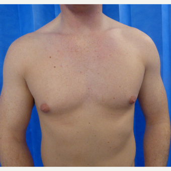 18-24 year old man treated with Male Breast Reduction before 3428605