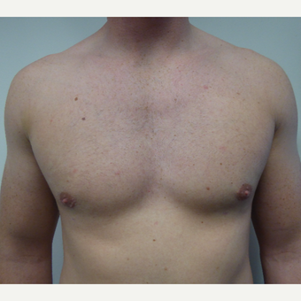 18-24 year old man treated with Male Breast Reduction after 3428605
