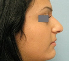 Rhinoplasty  before 132703