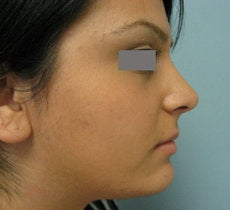 Rhinoplasty  after 132703