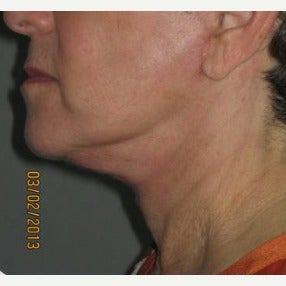 55-64 year old woman treated with Neck Lift