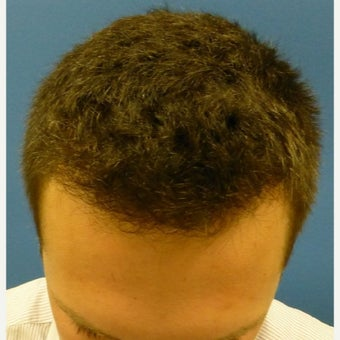 25-34 year old man treated with Hair Transplant after 1798388