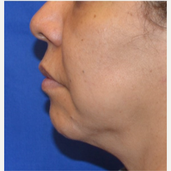 45-54 year old woman receives chin implant before 3763707