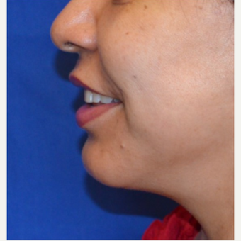 45-54 year old woman receives chin implant after 3763707