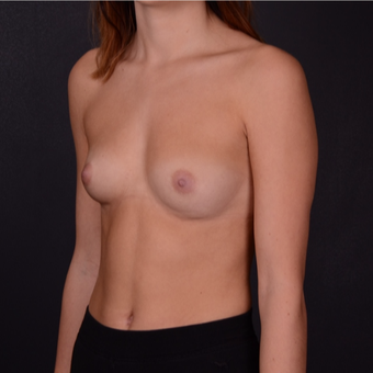 18-24 year old woman treated with Mentor Breast Implants before 3163273