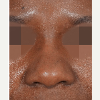 35-44 year old woman treated with Non Surgical Nose Job after 3244908