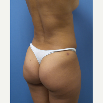 35-44 year old woman treated with Smart Lipo after 3098135