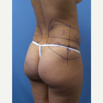 35-44 year old woman treated with Smart Lipo before 3098135