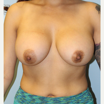 25-34 year old woman treated with Breast Augmentation after 3692202