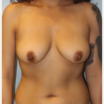 25-34 year old woman treated with Breast Augmentation before 3692202