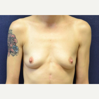 25-34 year old woman treated with Breast Augmentation before 3651671