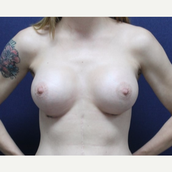 25-34 year old woman treated with Breast Augmentation after 3651671