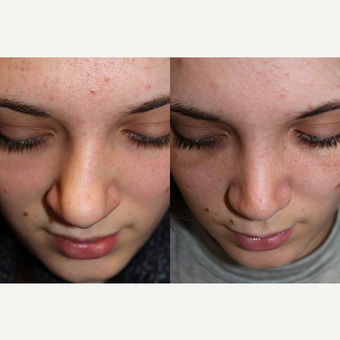 25-34 year old woman treated with Rhinoplasty after 3643473