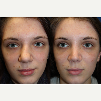 25-34 year old woman treated with Rhinoplasty before 3643473