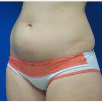 18-24 year old woman treated with CoolSculpting before 2833505
