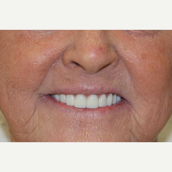 All-on-4 Dental Implants after 2373353